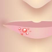 Lippenherpes Bläschen