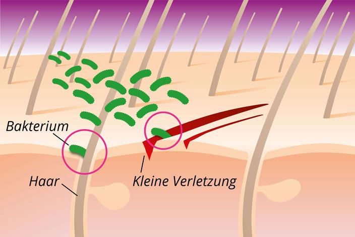 Bakterielle Hautentzündung