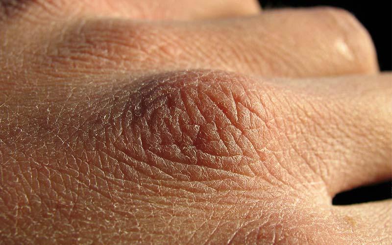 trockene Haut Hände