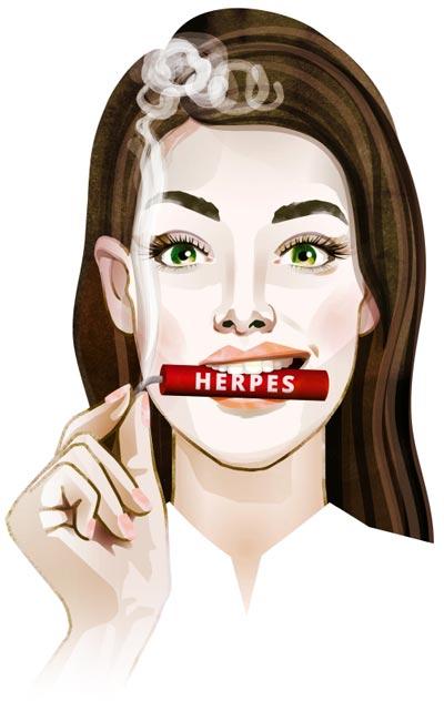 Lippenherpes entschärft